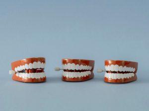 Macpherson Kelley Litigation and Dispute Resolution_chattering teeth